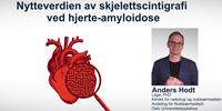 Anders_Hodt.original.png