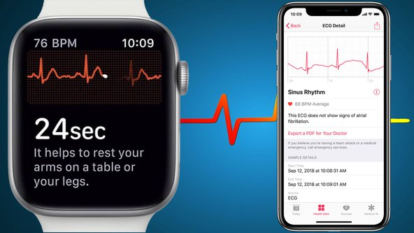 How-to-Use-ECG-on-Apple-Watch-Series-4-Outside-the-US.jpg